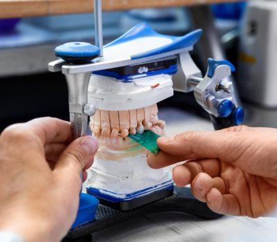 Ciekawostki związane z zębami 1